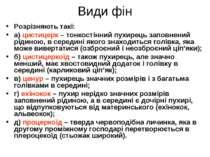 Види фін Розрізняють такі: а) цистицерк – тонкостінний пухирець заповнений рі...