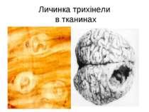 Личинка трихінели в тканинах