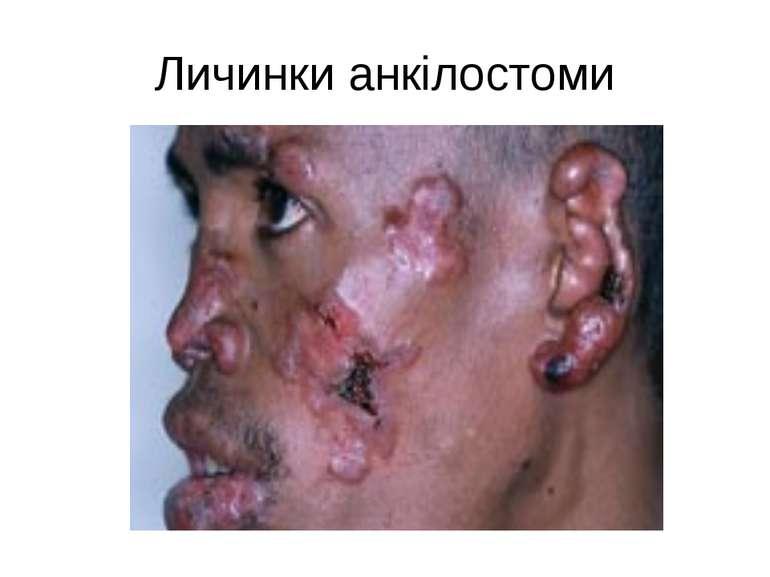 Личинки анкілостоми