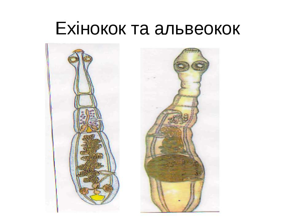 Ехінокок та альвеокок