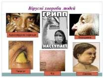 Вірусні хвороби людей Кір Бородавка Гепатит Аденовірусна інфекція Свинка