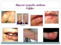Вірусні хвороби людини Герпес