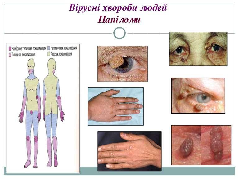 Вірусні хвороби людей Папіломи