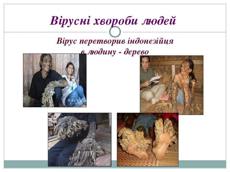 Вірусні хвороби людей Вірус перетворив індонезійця в людину - дерево