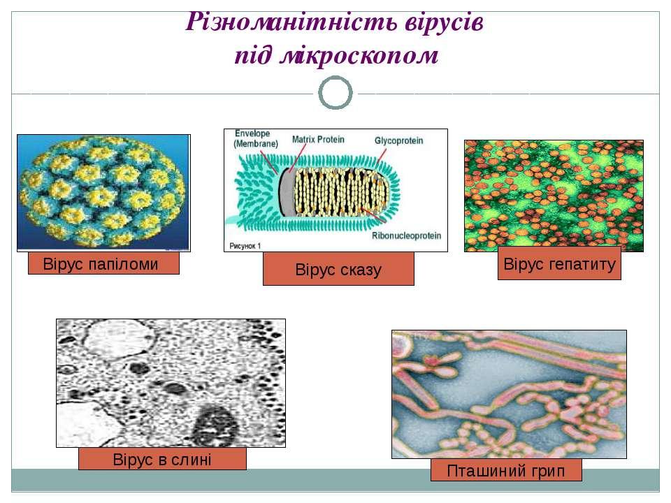 Різноманітність вірусів під мікроскопом Вірус папіломи Вірус сказу Вірус в сл...