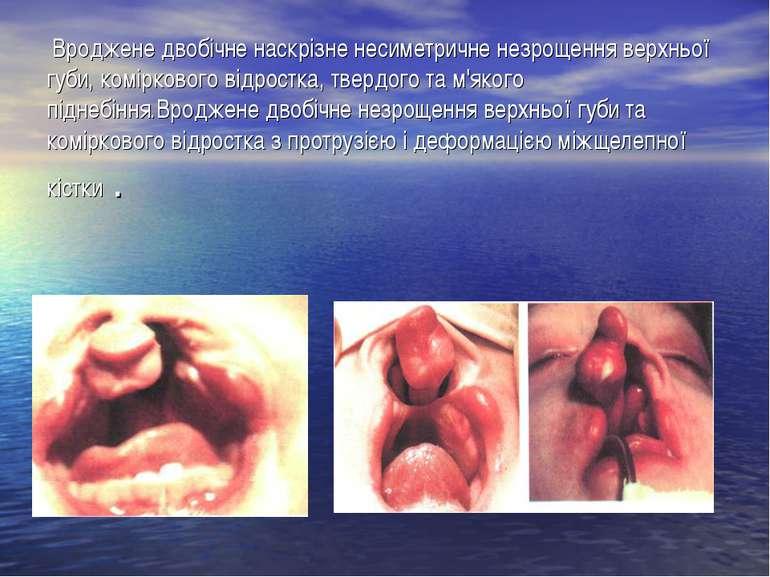 Вроджене двобічне наскрізне несиметричне незрощення верхньої губи, комірковог...