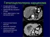 гіподенсивний при нативному обстеженні одиночний або множинні утвори часто ін...