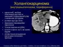 Холангіокарцинома (внутрішньопечінкова, периферична) одиночний, частіше гомог...