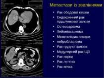 Метастази із звапіннями Рак ободової кишки Ендокринний рак підшлункової залоз...