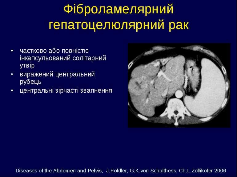 Фіброламелярний гепатоцелюлярний рак частково або повністю інкапсульований со...