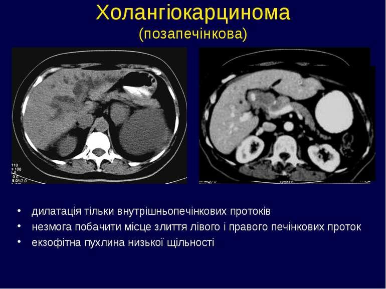 Холангіокарцинома (позапечінкова) дилатація тільки внутрішньопечінкових прото...