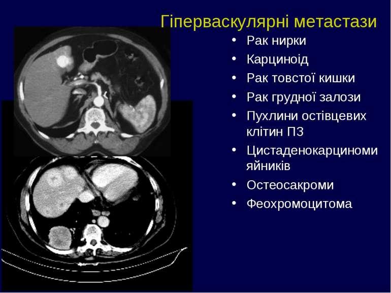 Рак нирки Карциноід Рак товстої кишки Рак грудної залози Пухлини остівцевих к...