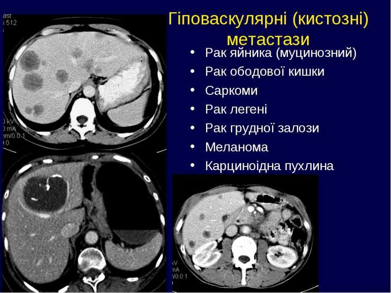 Гіповаскулярні (кистозні) метастази Рак яйника (муцинозний) Рак ободової кишк...