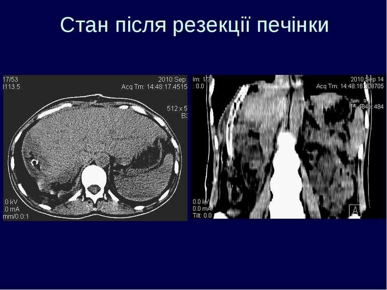 Cтан після резекції печінки