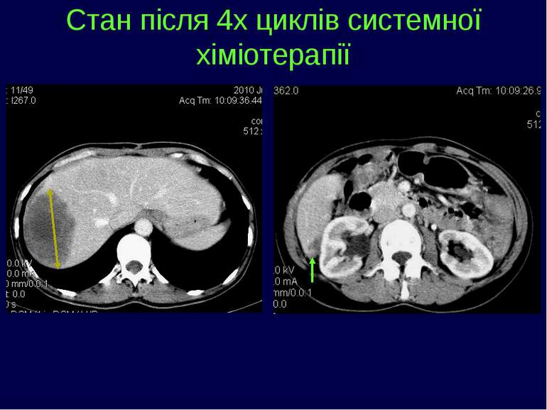 Стан після 4х циклів системної хіміотерапії