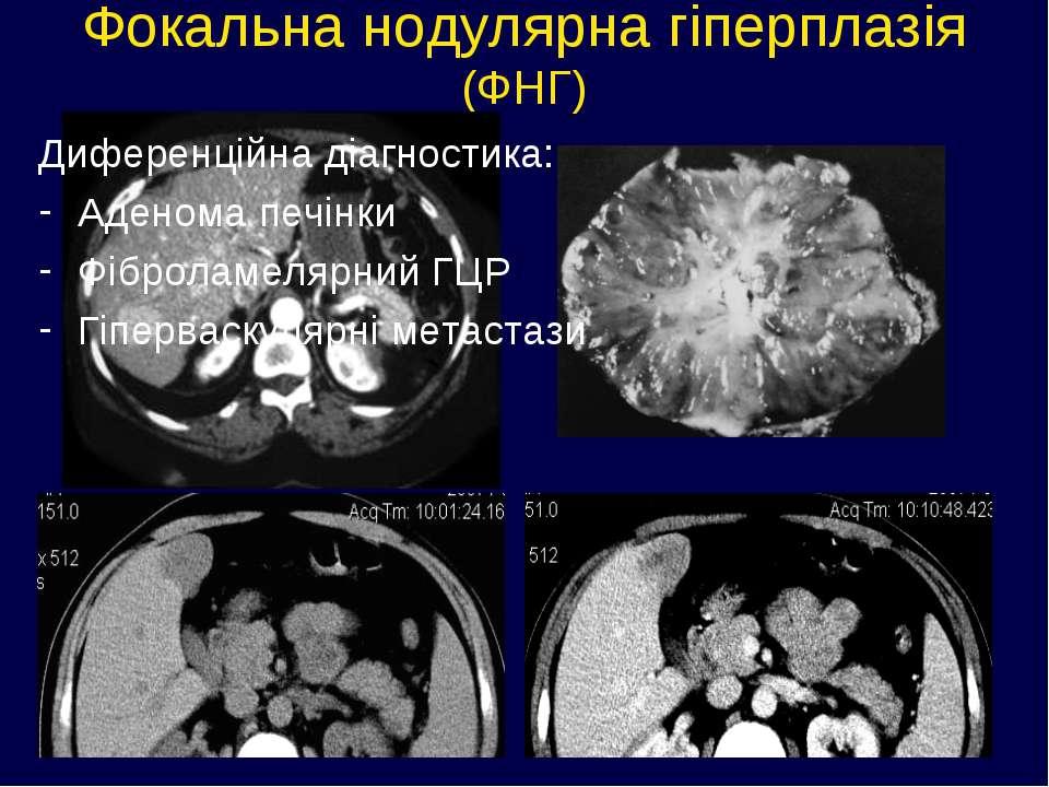 Фокальна нодулярна гіперплазія (ФНГ) Диференційна діагностика: Аденома печінк...