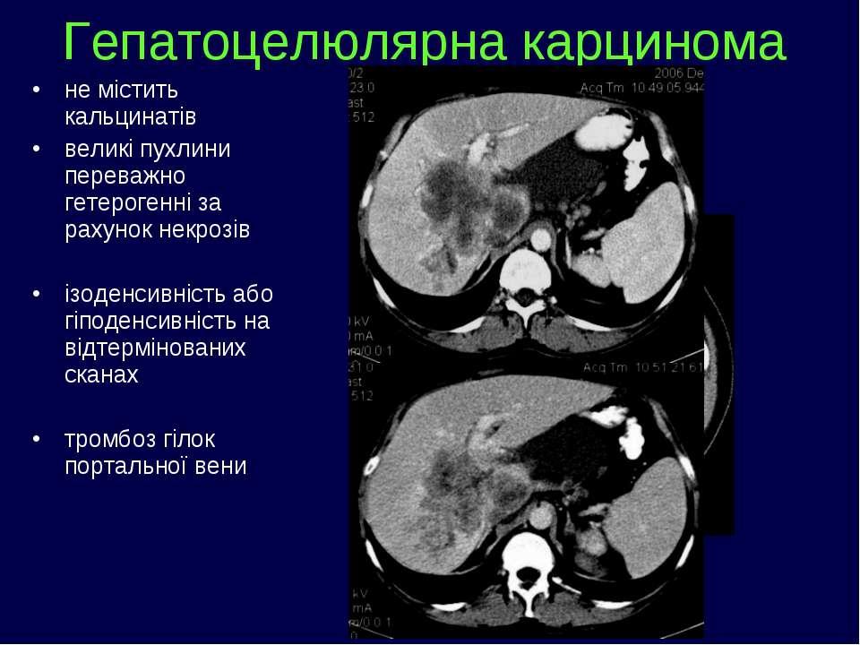 не містить кальцинатів великі пухлини переважно гетерогенні за рахунок некроз...