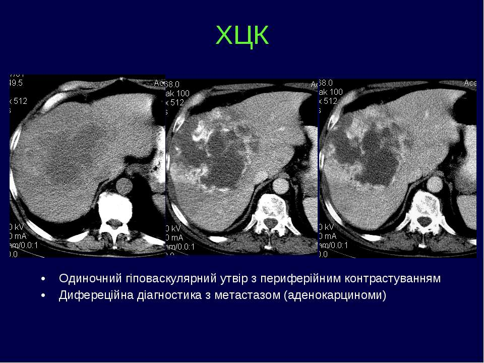ХЦК Одиночний гіповаскулярний утвір з периферійним контрастуванням Дифереційн...