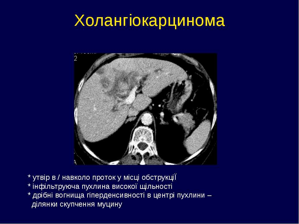 Холангіокарцинома * утвір в / навколо проток у місці обструкціЇ * інфільтруюч...