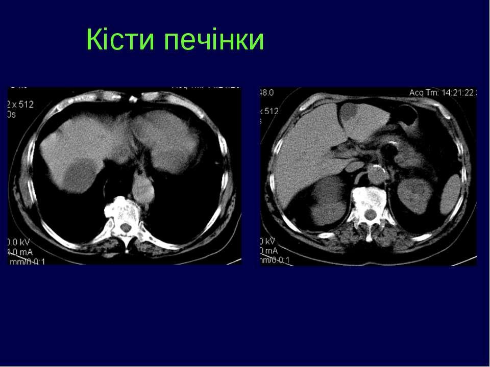 Кісти печінки