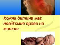 Кожна дитина має невід'ємне право на життя Кириченко В.А