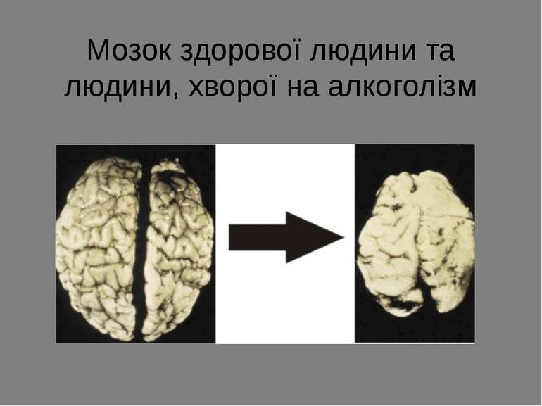 Мозок здорової людини та людини, хворої на алкоголізм