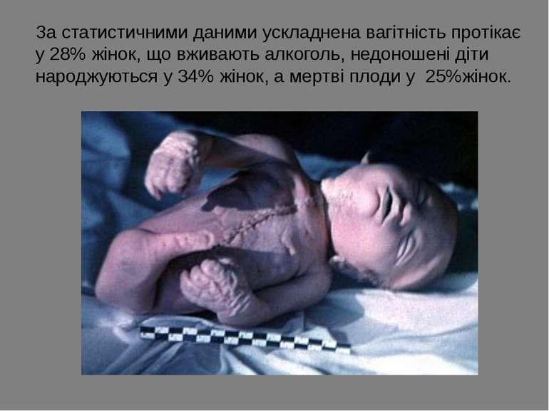 За статистичними даними ускладнена вагітність протікає у 28% жінок, що вживаю...