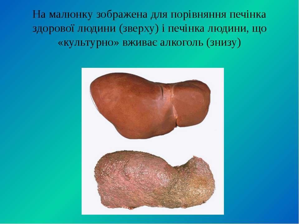 На малюнку зображена для порівняння печінка здорової людини (зверху) і печінк...