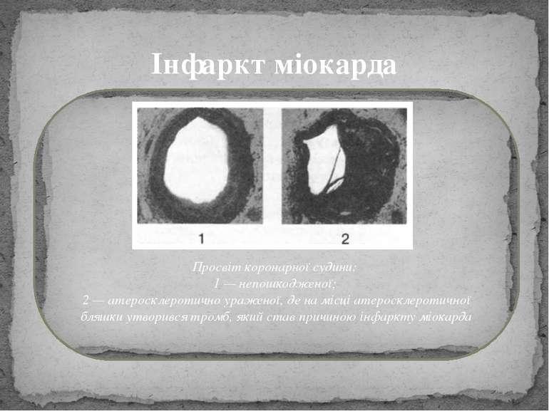 Інфаркт міокарда Просвіт коронарної судини: 1 — непошкодженої; 2 — атеросклер...