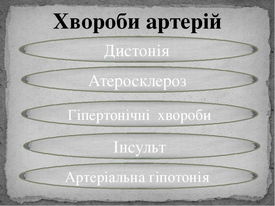 Хвороби артерій Дистонія Атеросклероз Гіпертонічні хвороби Артеріальна гіпото...