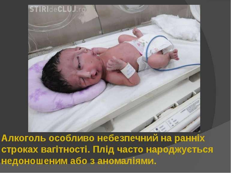 Алкоголь особливо небезпечний на ранніх строках вагітності. Плід часто народж...