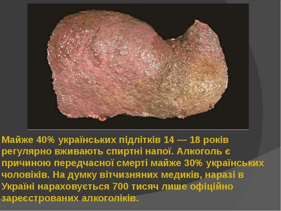 Майже 40% українських підлітків 14 — 18 років регулярно вживають спиртні напо...