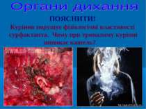 Куріння порушує фізіологічні властивості сурфактанта. Чому при тривалому курі...