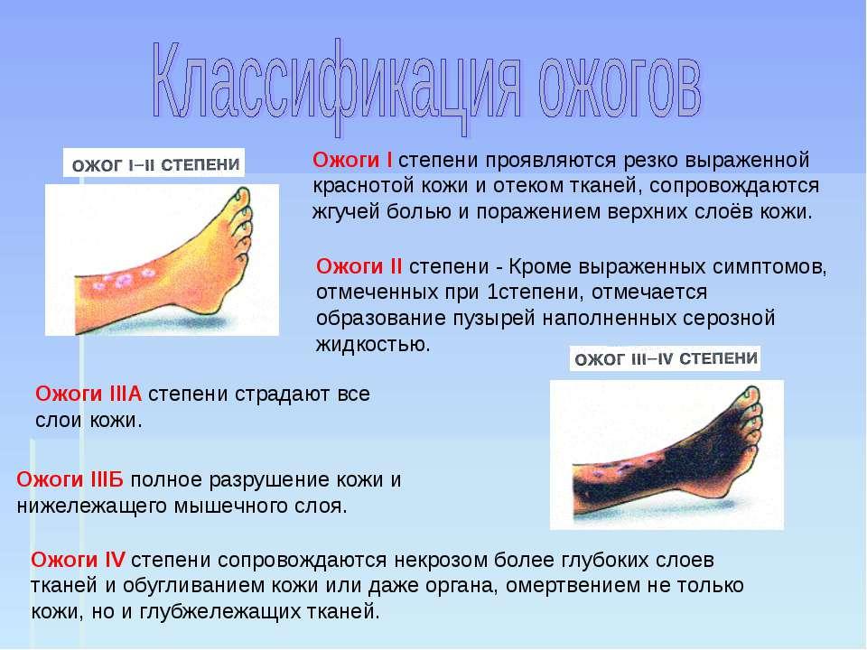 Ожоги І степени проявляются резко выраженной краснотой кожи и отеком тканей, ...