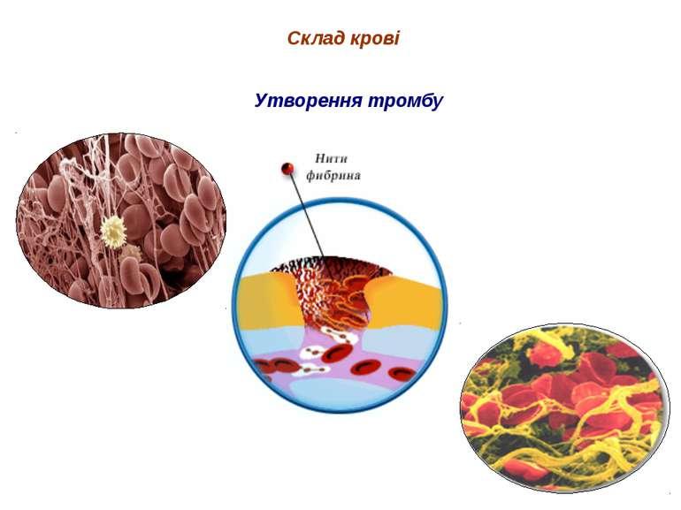 Склад крові Утворення тромбу