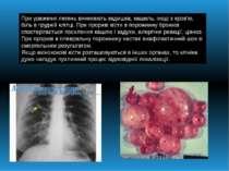 При ураженні легень виникають задишка, кашель, іноді з кров'ю, біль в грудній...