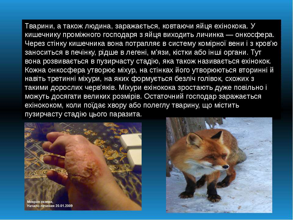 Тварини, а такожлюдина, заражається, ковтаючи яйця ехінокока. У кишечнику пр...
