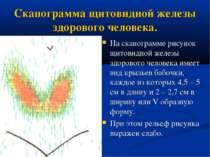 Сканограмма щитовидной железы здорового человека. На сканограмме рисунок щито...
