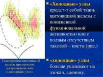 «Холодные» узлы предст-т собой ткань щитовидной железы с пониженной функциона...