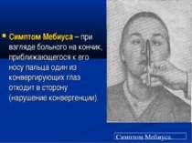 Симптом Мебиуса – при взгляде больного на кончик, приближающегося к его носу ...