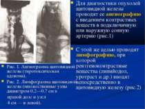 Рис. 1. Ангиограмма щитовидной железы (тиротоксическая аденома). Рис. 2. Лимф...