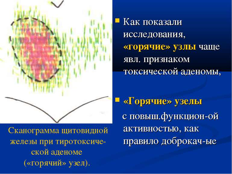 Как показали исследования, «горячие» узлы чаще явл. признаком токсической аде...
