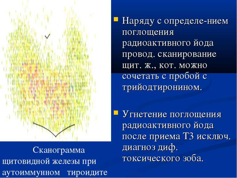 Наряду с определе-нием поглощения радиоактивного йода провод. сканирование щи...
