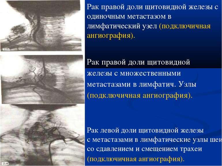 Рак левой доли щитовидной железы с метастазами в лимфатические узлы шеи со сд...