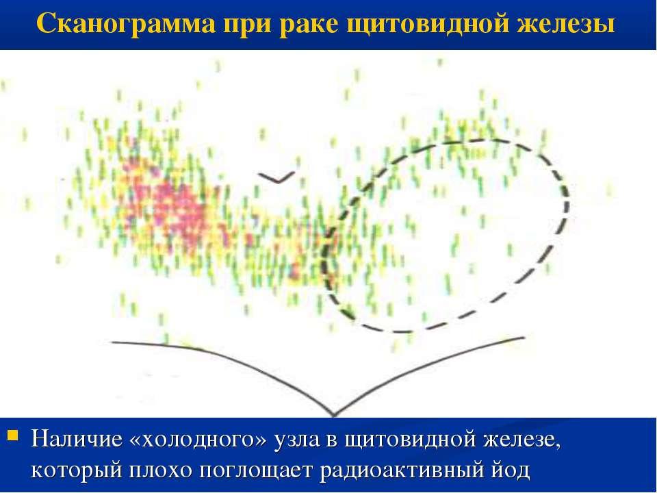 Наличие «холодного» узла в щитовидной железе, который плохо поглощает радиоак...