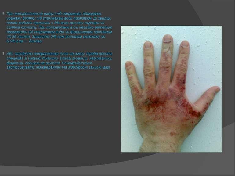 При потраплянні на шкіру слід терміново обмивати уражену ділянку під струмене...