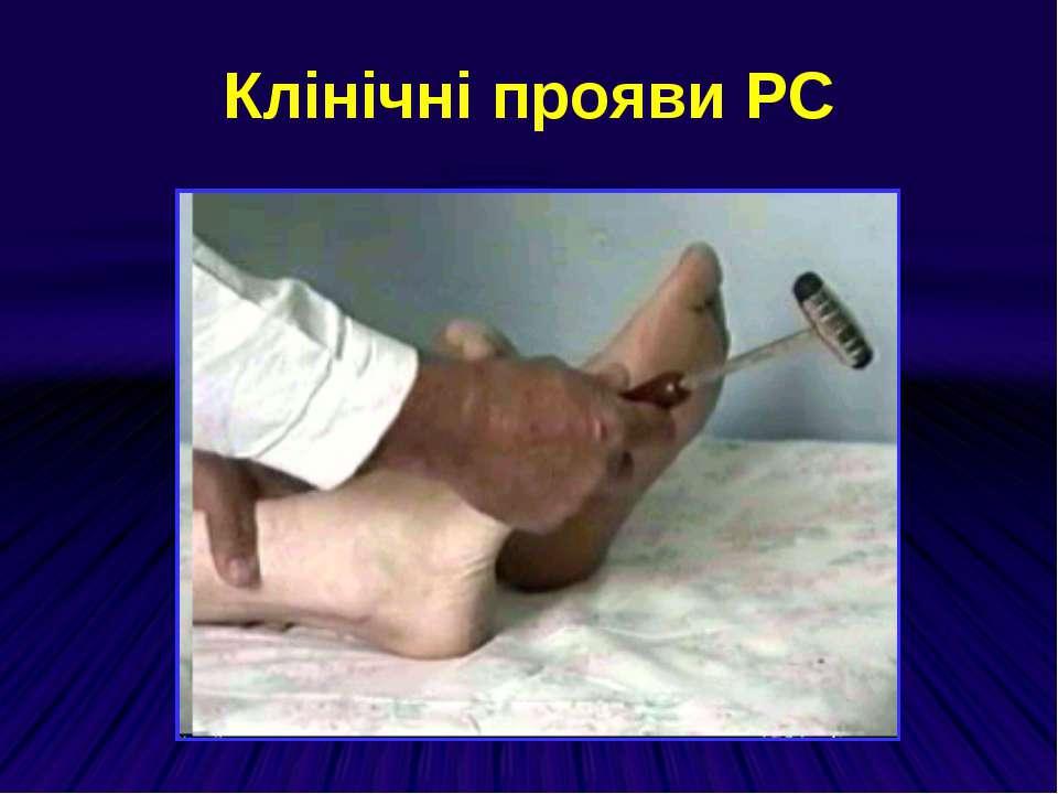 Клінічні прояви РС