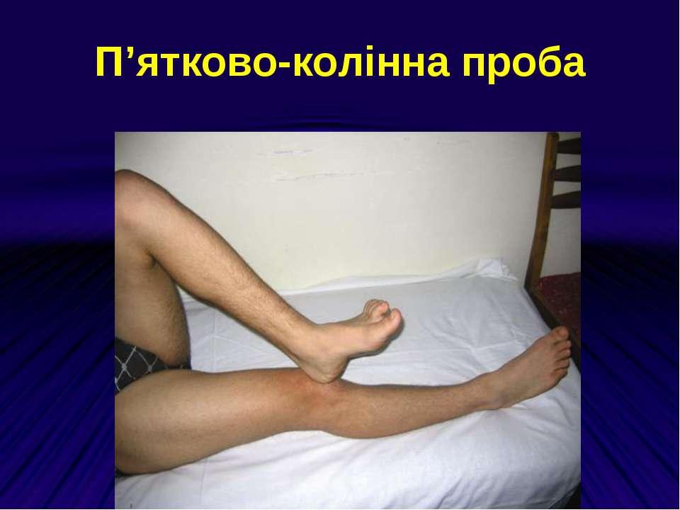 П'ятково-колінна проба