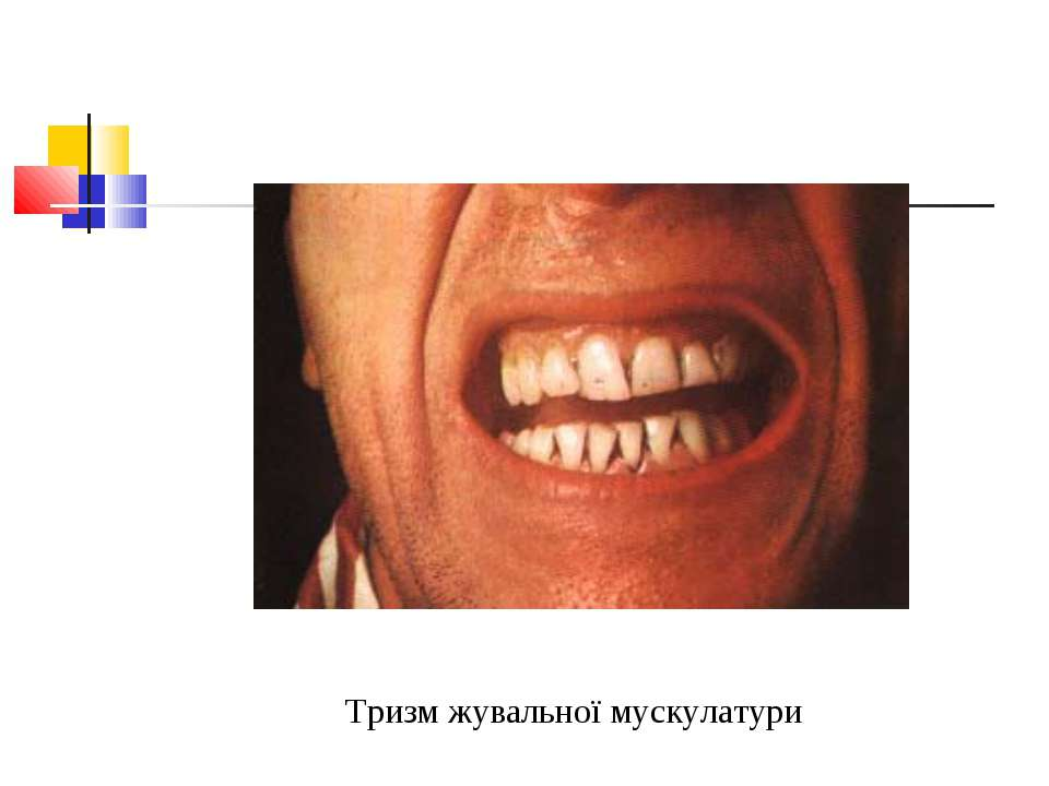 Тризм жувальної мускулатури