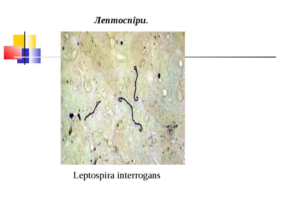 Лептоспіри. Leptospira interrogans